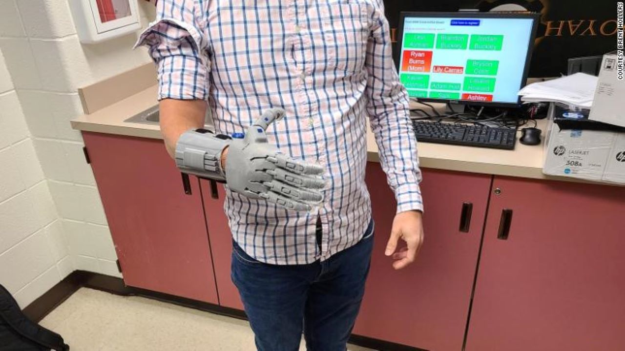 FIRST Robotics Competition Team Creates Prosthetic Hand